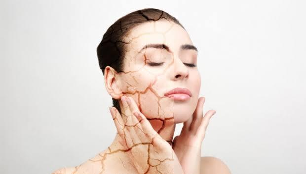 Perawatan kulit saat musim hujan