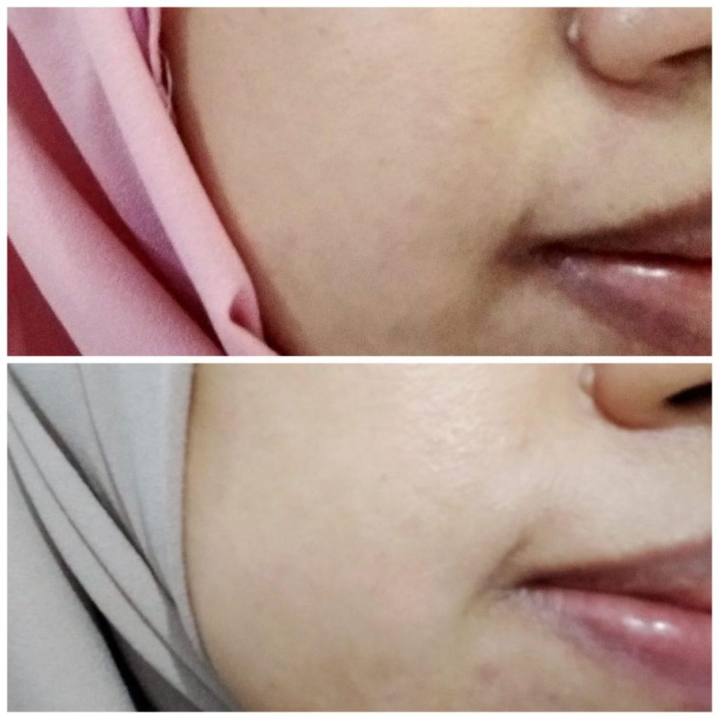 Perubahan kondisi kulit setelah pemakaian krim retinol Avoskin