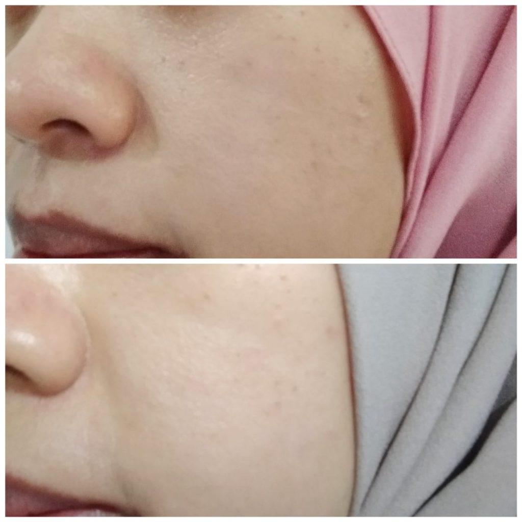 Perubahan warna kulit setelah pemakaian krim retinol Avoskin
