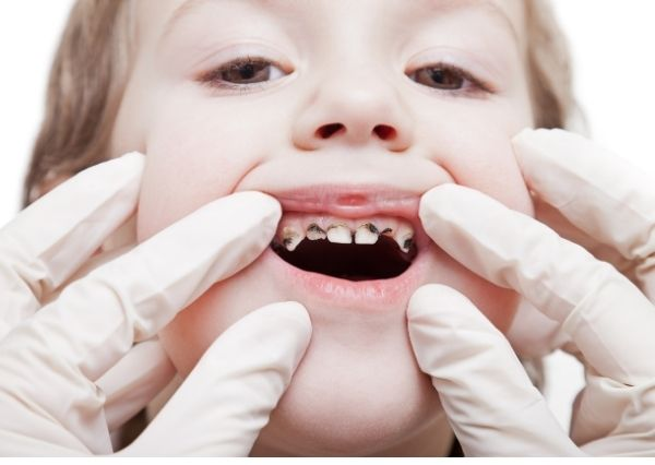 Karies gigi pada anak
