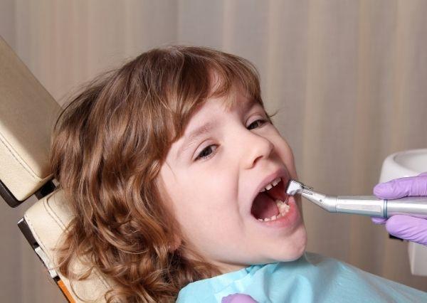 Cara merawat karies gigi pada anak