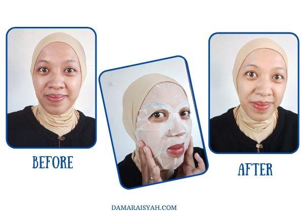 pengalaman menggunakan sheet mask DL Slim