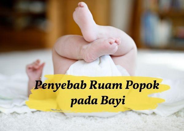 Penyebab munculnya ruam popok pada kulit bayi