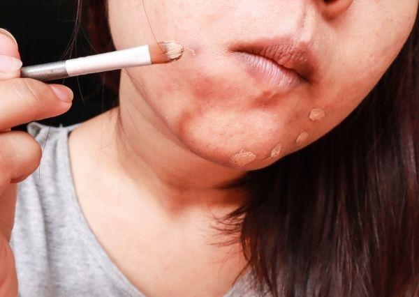 Penggunaan kosmetik dapat memperparah jerawat pada remaja